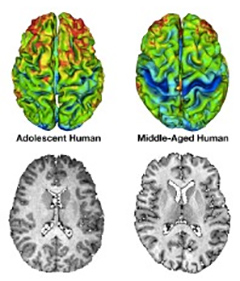 OCD and Teens' Brains