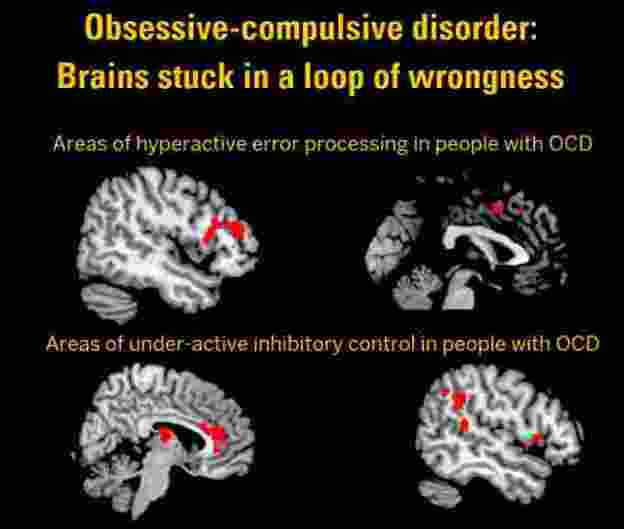 cingulo-opercular network in OCD