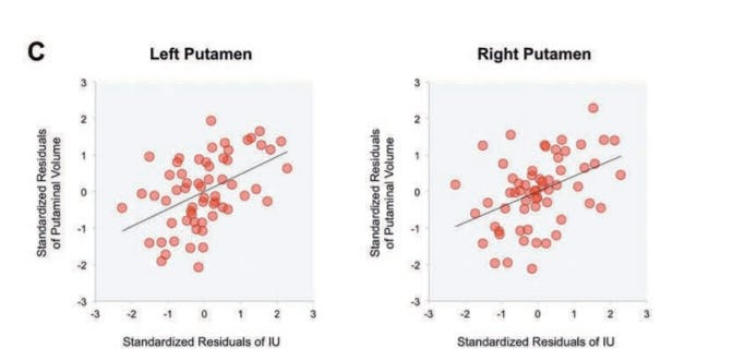 putamen striatum fear anxiety gad ocd generalized disorder obsessive compulsive